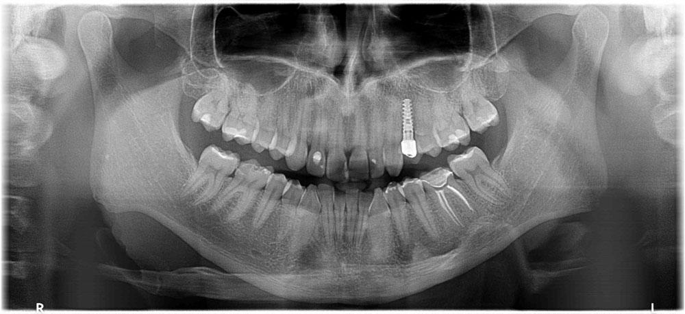 implanty zębów - po zabiegu