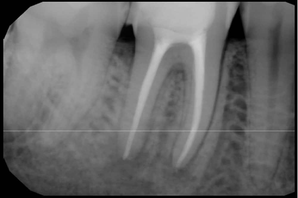 Leczenie kanałowe - ząb po zabiegu