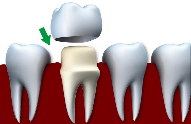Korony zębów i mosty protetyczne