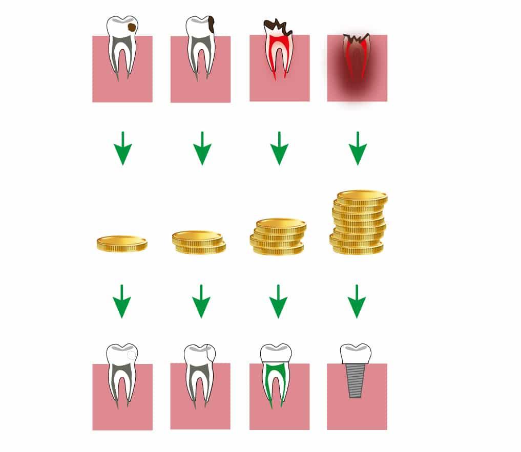 dentysta jak ceny zależą od uszkodzenia