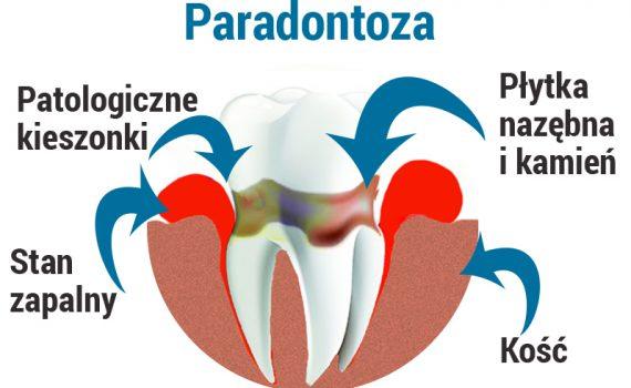 paradontoza - schemat