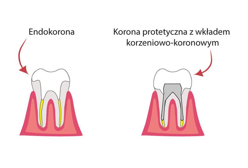 endokorona i korona protetyczna