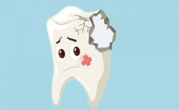 pęknięte zęby leczenie