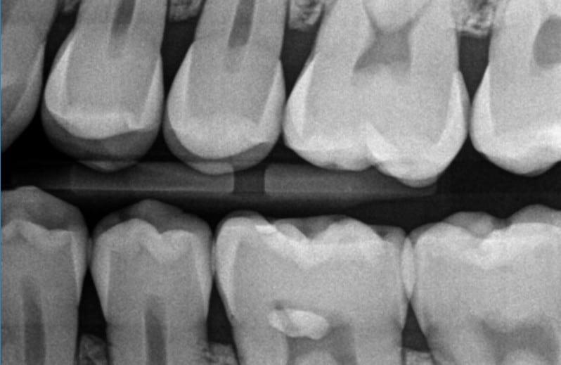 rvg zęba zdjęcie punktowe