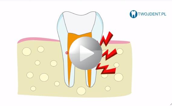 Reendo – powtórne leczenie kanałowe – ostatnia szansa uratowania zęba