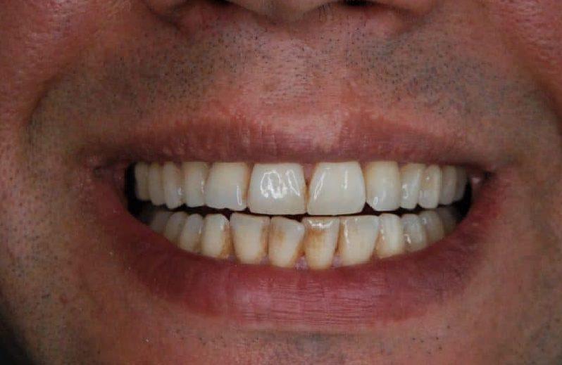 Żółte zęby? Co powoduje przebarwienia i jak się ich pozbyć?