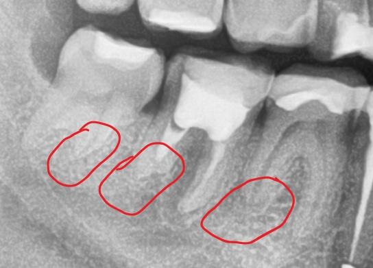 Zdjęcie - Resorpcja korzeni zębów