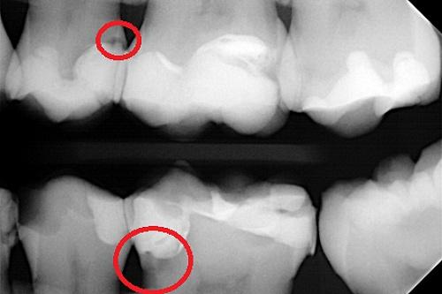 Zdjęcia RTG próchnica na powierzchniach stycznych zębów