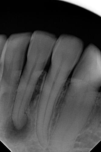 RTG martwego zęba