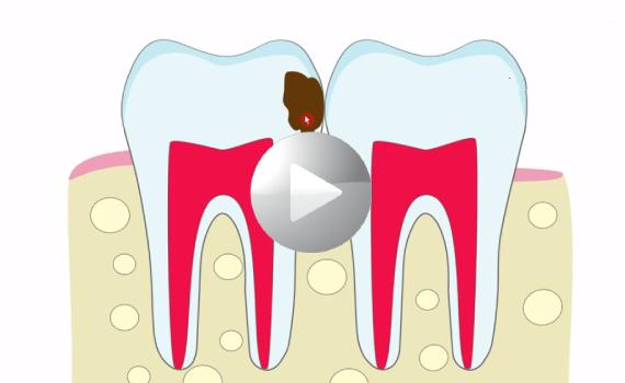 Skąd się biorą dziury w zębach?