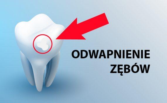 odwapnienie zębów Grójec leczenie