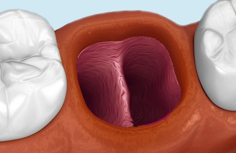 wyrostek zębodołu