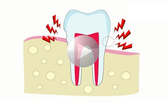 Nadwrażliwość zębów – co ją powoduje i jak się jej pozbyć?